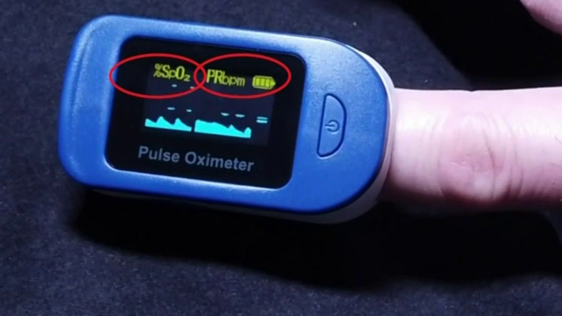 Read more about the article The 5 Best Pulse Oximeter Reviews